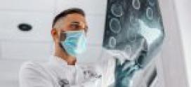 COVID-19 : Symptômes neurologiques, inflammation ou infection ?